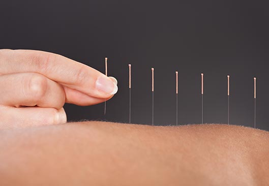 Back Acupuncture - Valley Physiotherapy Clinic
