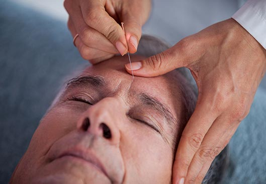 Facial Acupuncture - Valley Physiotherapy Clinic